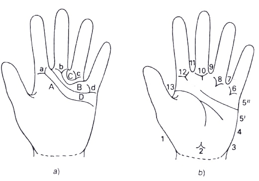 Figura 1 - analisi antropologica delle impronte palmari